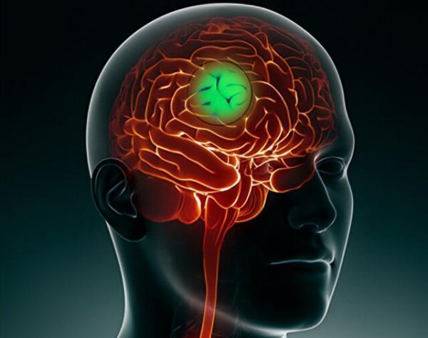 کاهش گسترش سرطان مغز با یاری یک راستا سلولی